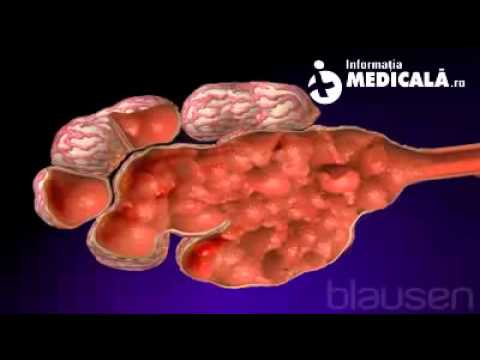 Cancer de biliar