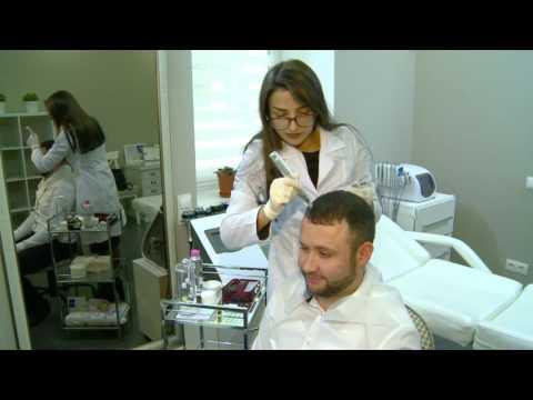 Выпадение волос: Dermapen поможет решить проблему