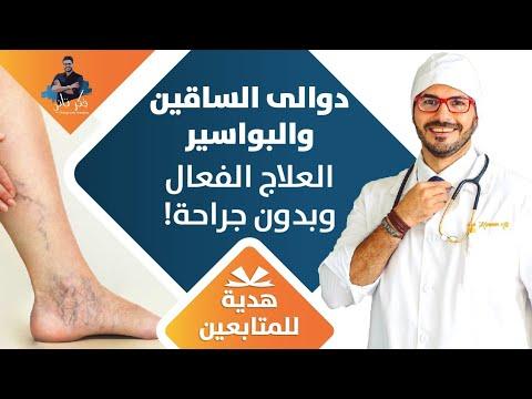 ٧١-  علاج دوالي الساقين/ البواسير والعلاج النهائي بدون جراحة بطريقة فعالة