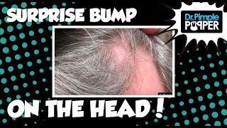 What is this on his Scalp? HINT: It