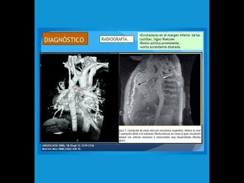 Tratamiento de la cardiopatía hipertensiva