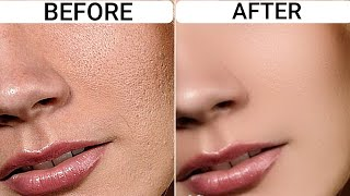 In #3Uses Get Rid Of Uneven Skin Texture-Rough,Bumpy Skin, Build Ups &Get Smooth Bright Glowing Skin