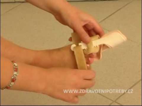 Jak leczyć koślawego stóp u dzieci