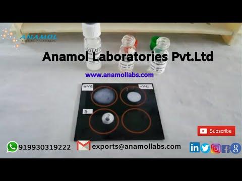 Anti-Streptolysin ASO Assay Kit by Latex Agglutination