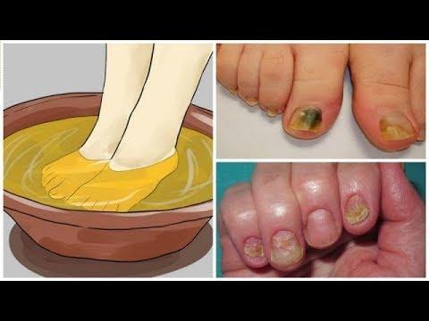 El hongo de las uñas por que