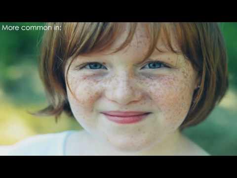 Cosmetics cream mag-upak ng freckles