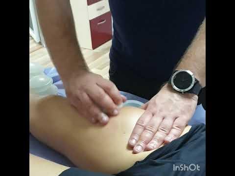 Artrita reumatoidă a degetului