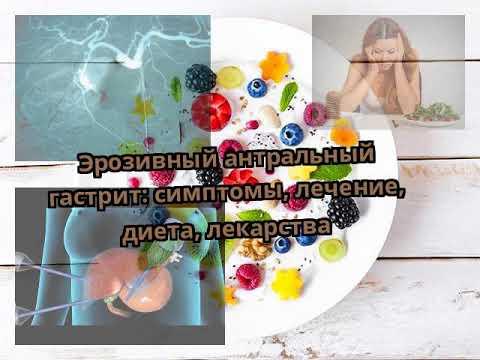 Эрозивный антральный гастрит: симптомы, лечение, диета, лекарства