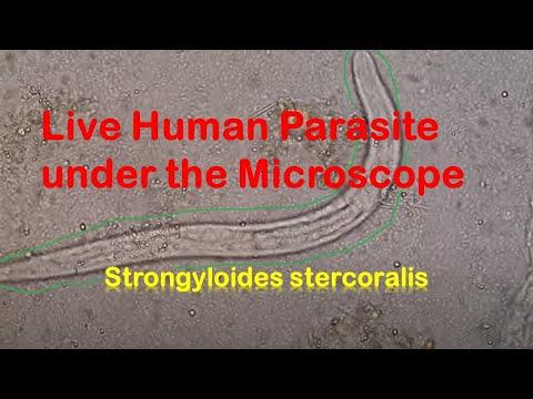Parazitakezelés a 4. módszer szerint