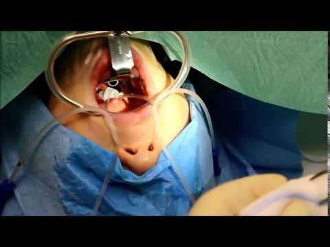 Wunden rechten Seite des Halses und Rückseite des Kopfes gibt