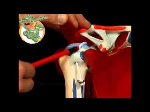 Cuscino con osteocondrosi della colonna cervicale