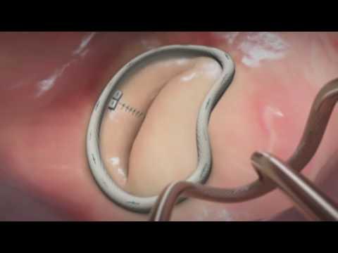 Schmerzen in den Gelenken und Knochen während der Schwangerschaft