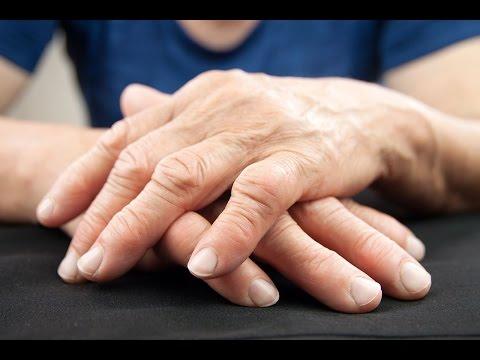 El vídeo de los dietólogos sobre el adelgazamiento