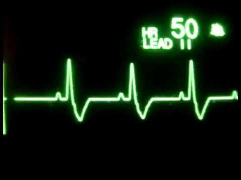 Plan für die Behandlung von Bluthochdruck