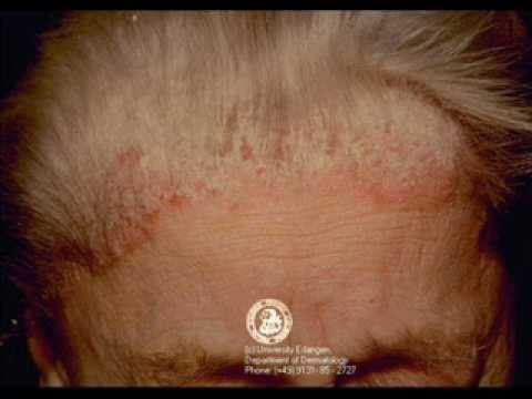 Dermatite de atopic de crianças pathogenesis