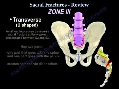 Izomízületek csontfájdalom tünetei