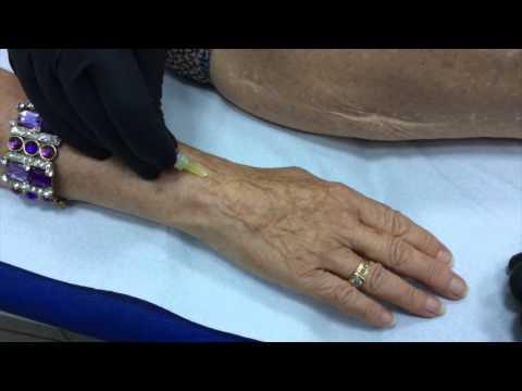 Cosa fare con il dolore nel gomito