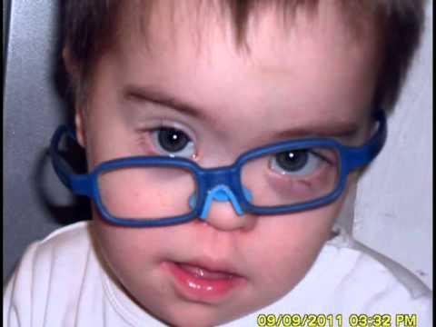 Watch videoSíndrome de Down: Duendecito del Amor