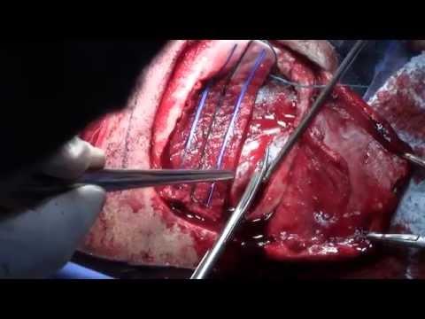 Si es posible bucear en un soplo-hipertensiva