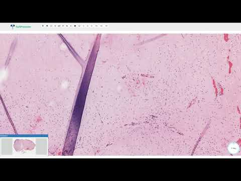 Vaccino papilloma virus nel maschio