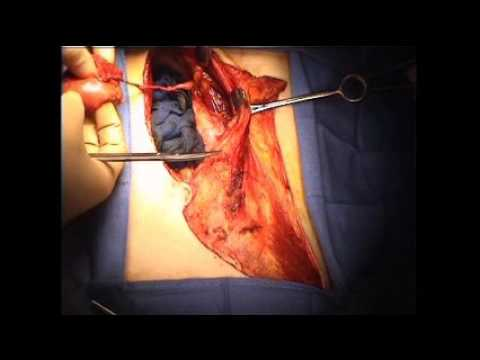 Die Abteilungen des Brustkorbes die Anatomie