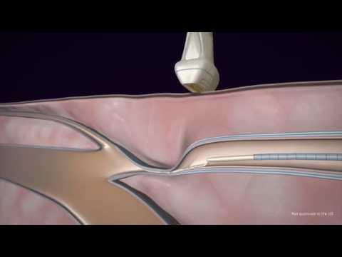 Wie die Ermüdung der Beine bei warikose abzunehmen