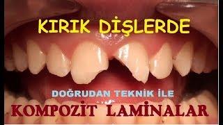 Kırık Ön Dişlerde Kompozit Laminalar 2