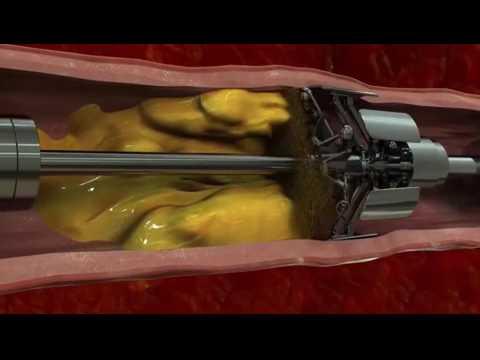 La thrombose au stade rekanalizatsii que cela