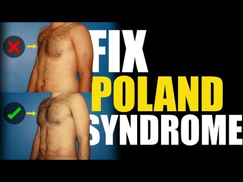 What is Poland Syndrome in Men?