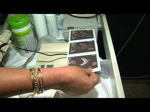 Szemészeti ciklosporin utasítás