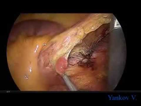 Laparoscopic Abdomino-Transanal Resection Of The Rectum