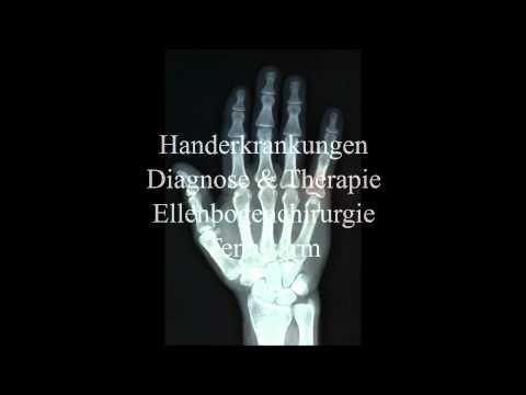 Weit verbreitet Osteochondrose Shop