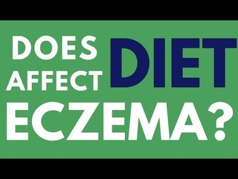 Does diet affect eczema? - eczema diet secrets - what you are eating can be the cause of eczema