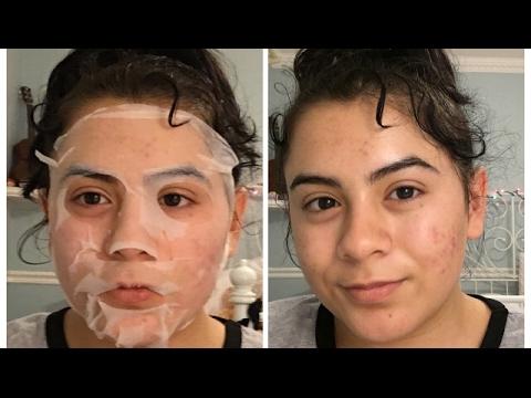 Les rappels sur solkoseril le gel dans la cosmétologie pour la personne les rappels