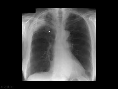 Cum se tratează artroza număr de articulații