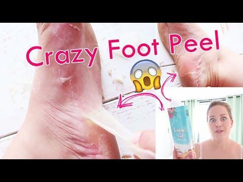 Hat den Kern die Finger des Beines ausgeschlagen