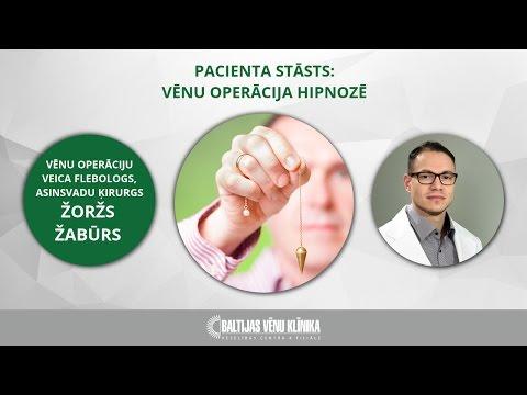 Wie den Gastroknemius bei warikose zu behandeln