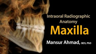 Intraoral Radiographic Anatomy of the Maxilla