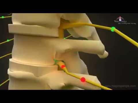 Es tut der Rücken die körperliche Belastung weh