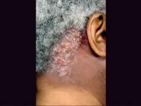 Worm sa thyroid gland