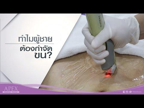 กำจัดเส้นเลือดเลเซอร์ศูนย์หลอดเลือดดำ