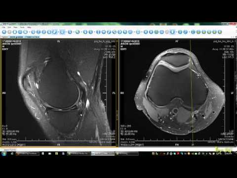 Artroza de gradul doi la nivelul șoldului