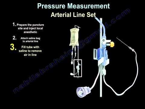 Behandlung von Bluthochdruck Medikamente