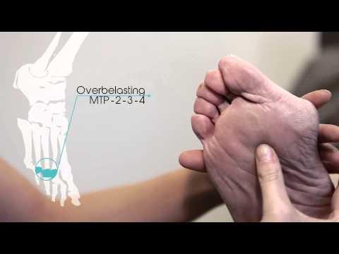 สายรัดแขนสำหรับกระแทกบนนิ้วมือ