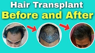 1 AFRICAN AMERICAN Hair Transplant before and after (7