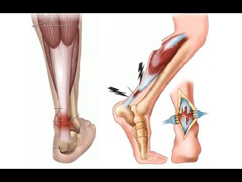 Чем лечить остеохондроз на стопе ноги