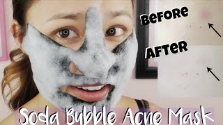 First Impressions ♥ Mediheal Mogongtox Soda Bubble Acne Sheet Mask