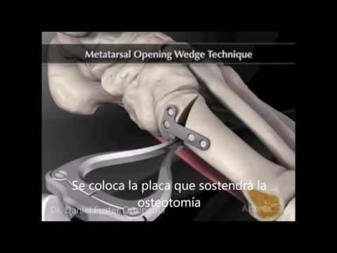 Blokada dla kości w nogach około koślawego koślawego PRO
