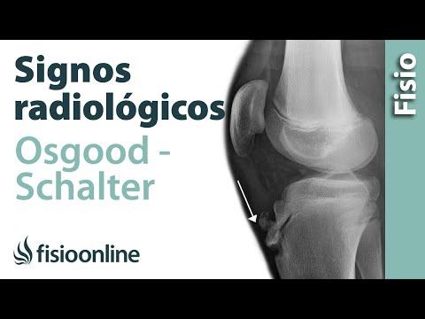 Ungüento contra la inflamación de las articulaciones