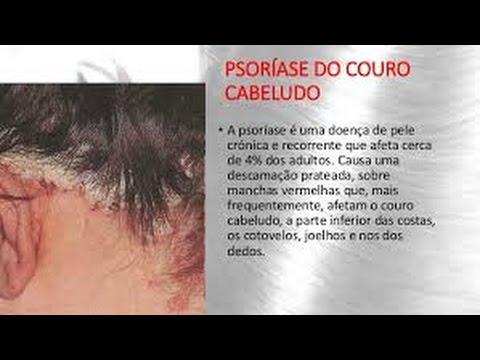 Tratamento de remédios de gente de psoríase de unguento com base em cera